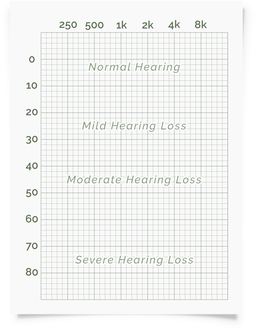 Online Hearing Test & Audiogram Printout Throughout Blank Audiogram Template Download
